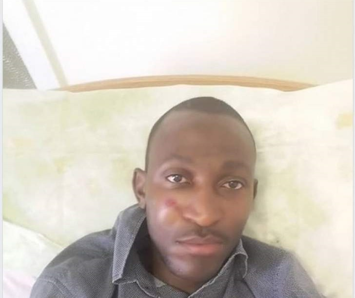 Police Badly Assault MDC Youth Leader During Protests