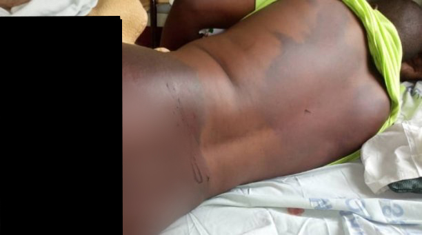 Mutare Man Who Was Viciously Assaulted By Soldiers Dies
