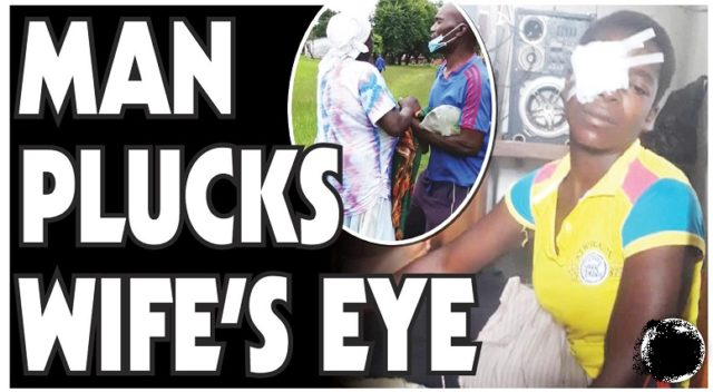 MAN PLUCKS OUT WIFE'S EYE