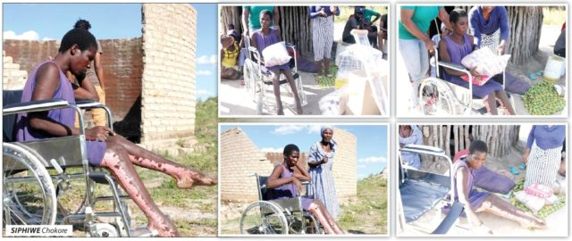 Alfred Dondo Foundation Assists Woman Struck by Lightning!