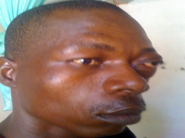 """""""I'm Hurt By Injustice"""", Zim Immigrant In Botswana Recounts Brutality At Hands Of Police"""
